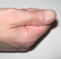 Продукты, провоцирующие обострение микоза - грибкового поражения ногтей