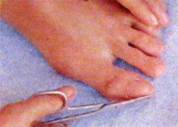 Домашний педикюр пошаговое фото