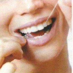 Как правильно пользоваться флоссами (зубной нитью)?