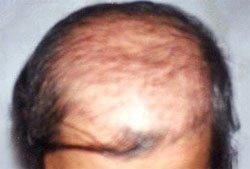 Выпадение волос у мужчин - уход за волосами