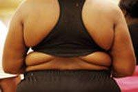 Ожирение - избыточное накопление жира