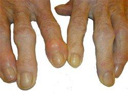 Остеоартроз  деформирующий - заболевания суставных хрящей и костей