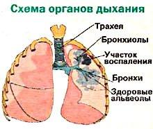 Пневмония - симптомы, признаки
