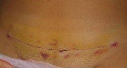 Кесарево сечение и сколько детей может иметь женщина после такой операции