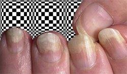 Если слоятся ногти