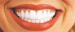Как избавиться от желтизны на зубах в домашних условиях