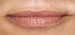Уход за губами и морщинками над верхней губой