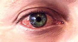 Глаза - лечение народным методом