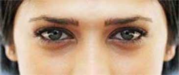О чем говорят мешки под глазами и как их лечить