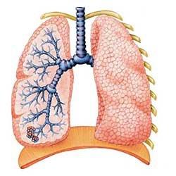 Бронхоэктатическая болезнь - Болезнь человека