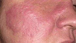 Дерматомиозит - Болезни человека