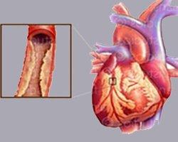 Кардиосклероз атеросклеротический - Болезни человека