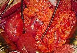 Кровотечение желудочное кишечное - Болезни человека