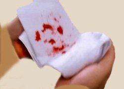 Кровотечение легочное, кровохарканье - Болезни человека