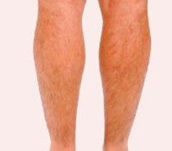 Волосатость ног