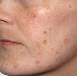 Пигментные пятна на лице (хлоазма)