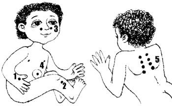 Проявление аллергии у детей - Аллергический диатез