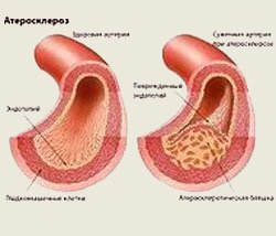 Инфрапателлярный бурсит коленного сустава симптомы и лечение