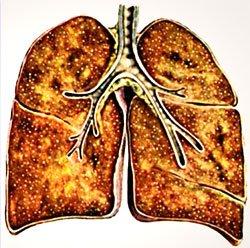 Диссеминированный туберкулез - Болезни человека