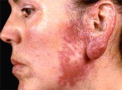 Внелегочный туберкулез