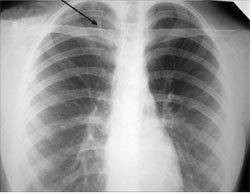 Очаговый туберкулез легких - Болезни человека