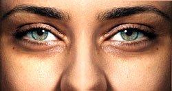 Причина мешков под глазами
