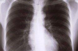 Инфильтративный туберкулез - Болезни человека