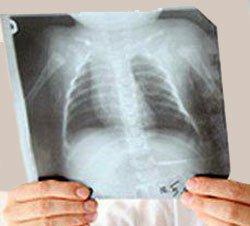 Туберкулемы легких - Болезни человека