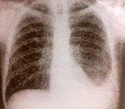 Туберкулезный плеврит - Болезни человека