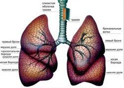 Туберкулез верхних дыхательных путей - Болезни человека
